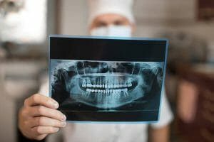 Male dentist holding up x-ray